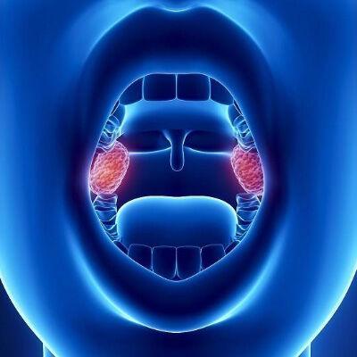 amigdaloktomi-Vasiliadis-ORL